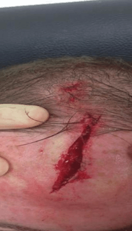 Rooney head injury